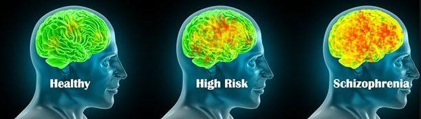 Şizofreni şizofreni tedavisi şizofreni nedir şizofreni belirtileri şizofreni şizofren nedir şizofren ne demek şizofren belirtileri şizofren